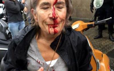 La violenza spagnola causa 761 feriti